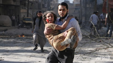 To this child, the reason for the shelling doesn't matter